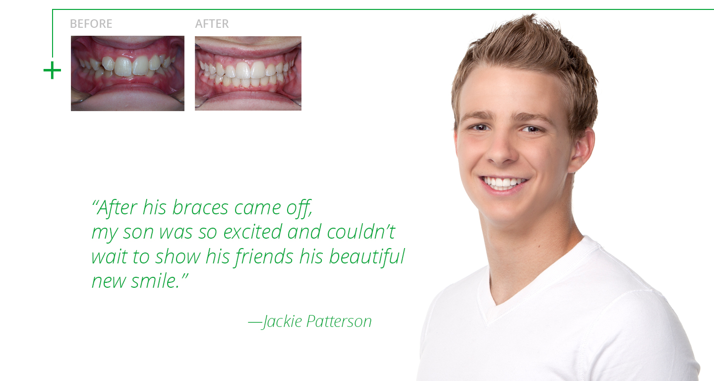 advanced-orthodontics-braces-before-and-after5