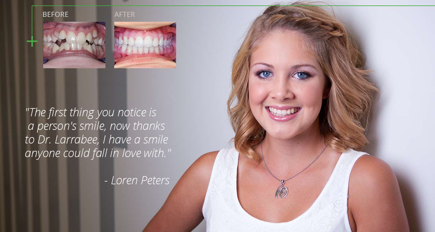 advanced-orthodontics-braces-before-and-after