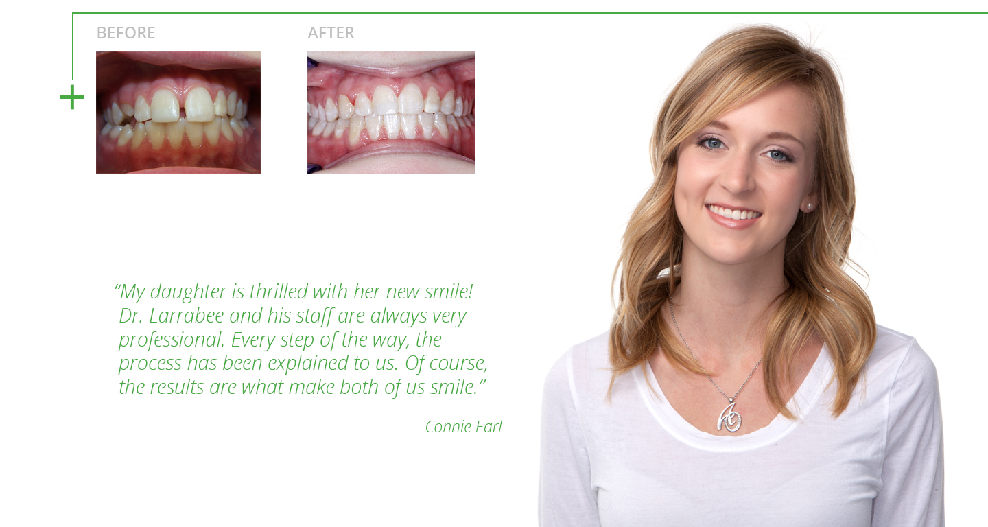 advanced-orthodontics-braces-before-and-after2