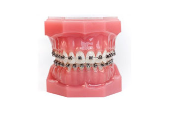 advanced-orthodontics-high-tech-braces-section