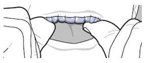 inserting invisalign