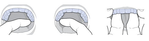 removing invisalign