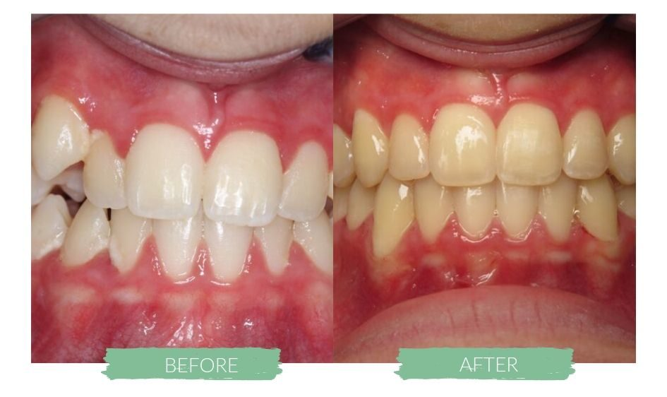 Invisalign Before and Afters 2