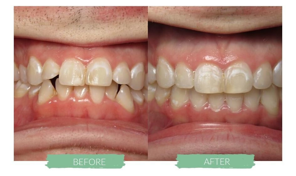 Invisalign Before and Afters 3